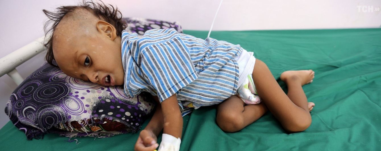 В Йемене от голода умерли почти 85 тысяч детей
