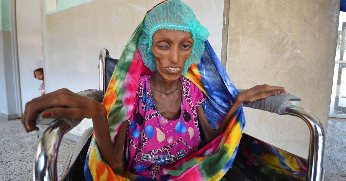 18-річна Саїда Ахмад Багхілі сидить в інвалідному візку в лікарні Аль-Тавра, де вона отримує лікування від важкої гострої недостатності харчування у місті Ходейда, Ємен. @ Reuters