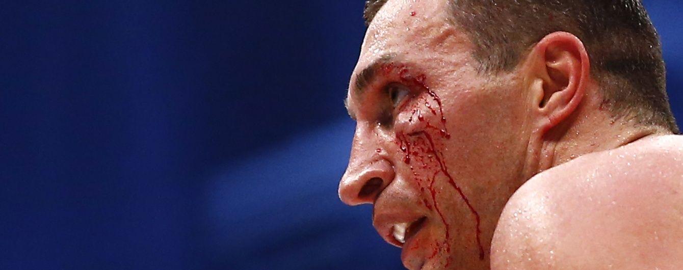 Букмекери вважають, що Кличко поставив проти себе у поєдинку з Ф'юрі - російський промоутер
