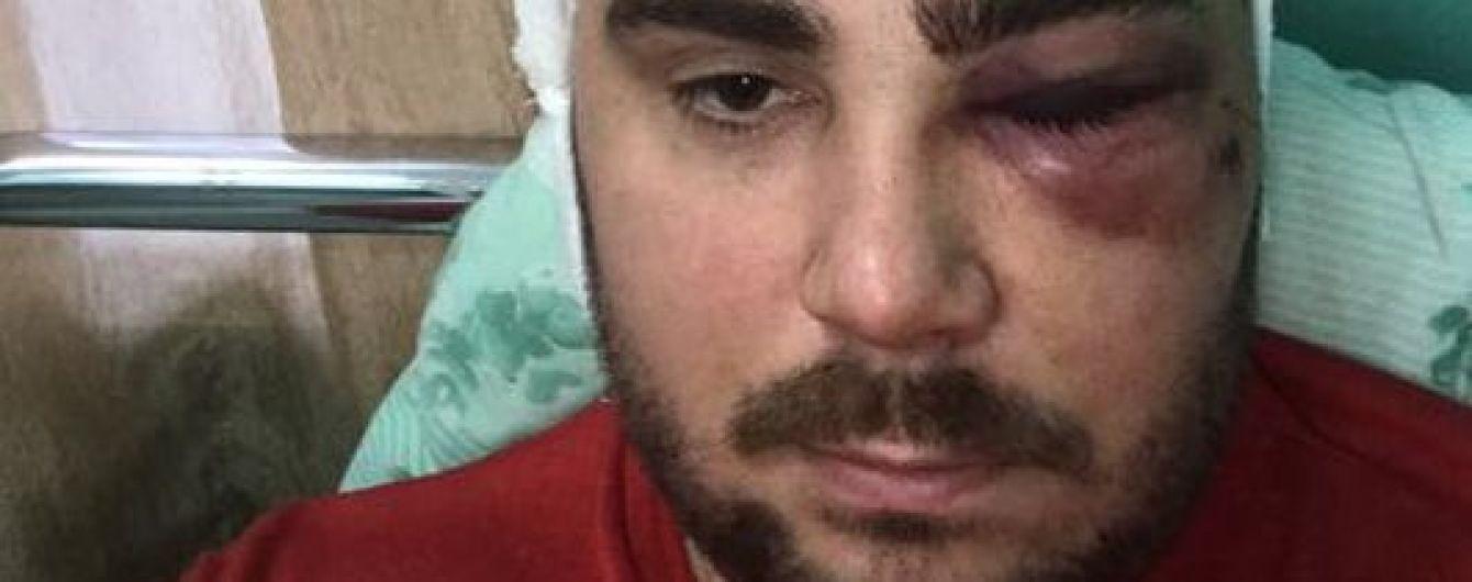 """У Запоріжжі впіймали нападника, який прострелив ногу очільнику місцевої """"Авто Євро Сили"""""""