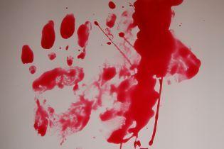 Різанина у святині РПЦ: п'яний ігумен Троїце-Сергієвої лаври почикрижив ножем монаха-диякона