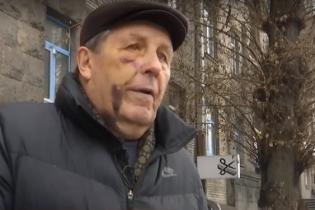 У Києві побили авіаконструктора. Він звинуватив поліцейських