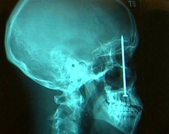 спецпроект рентген 5