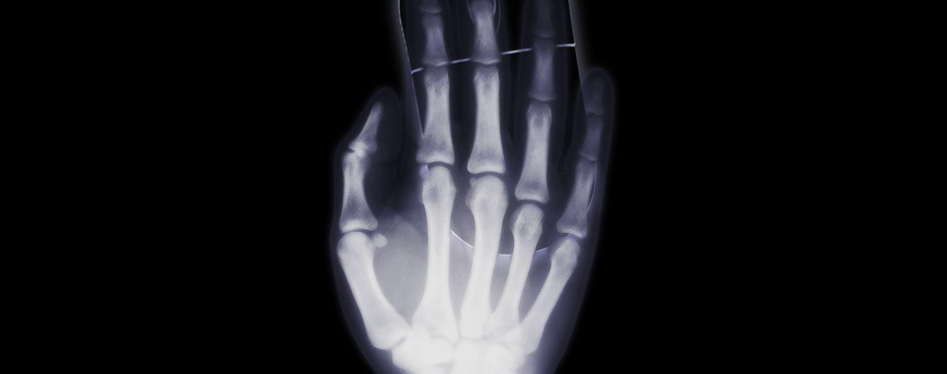 """""""Губка Боб"""", телефон и банка из-под кофе: самые странные предметы, которые находили в людях с помощью рентгена"""