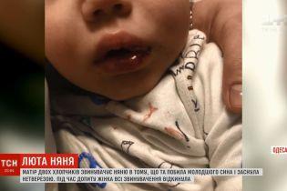 """""""Весь рот в крови"""": в Одессе няню обвинили в избиении годовалого ребенка"""