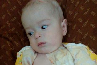 В головке крошечного Дениска выросла огромная опухоль, которая смещает мозг