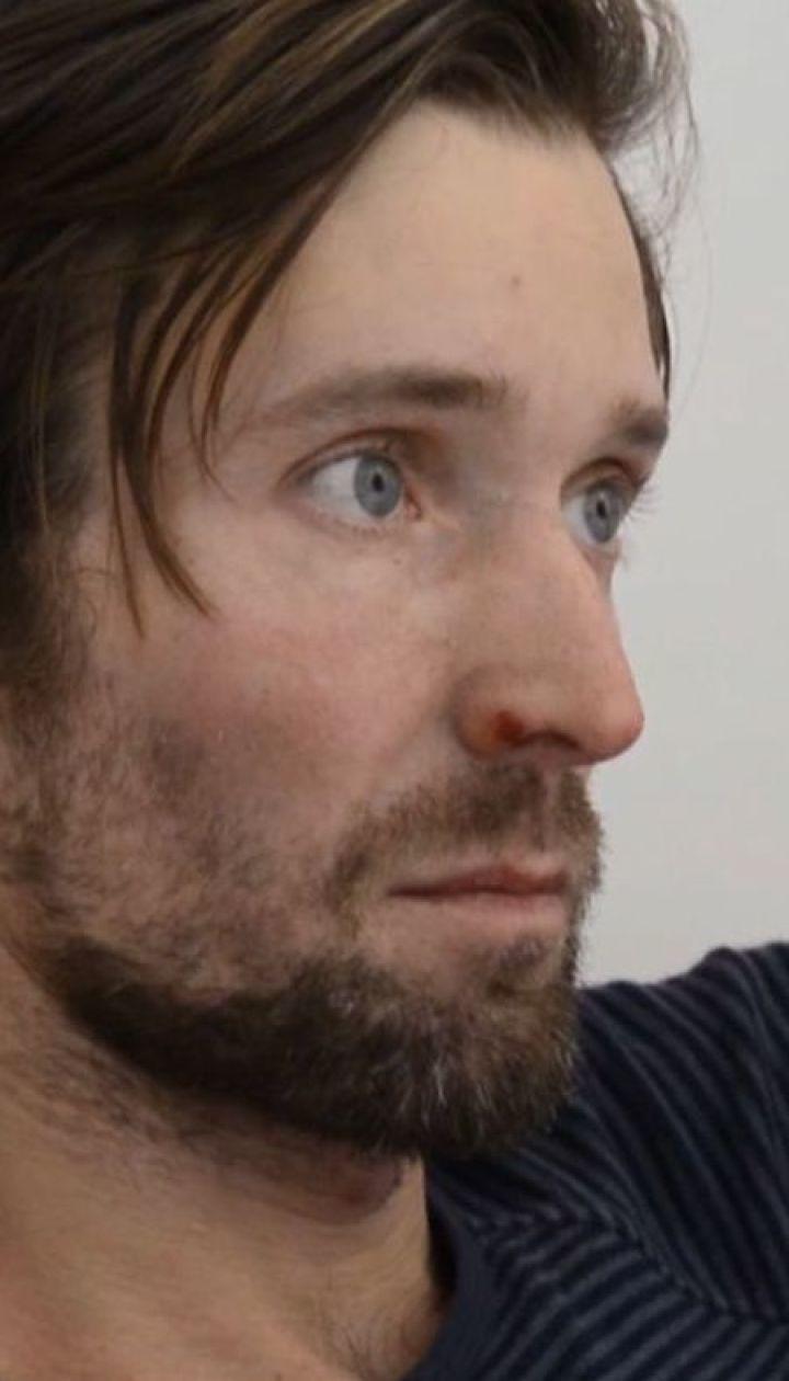 Знайдений лижник розповів, як йому вдалося вижити