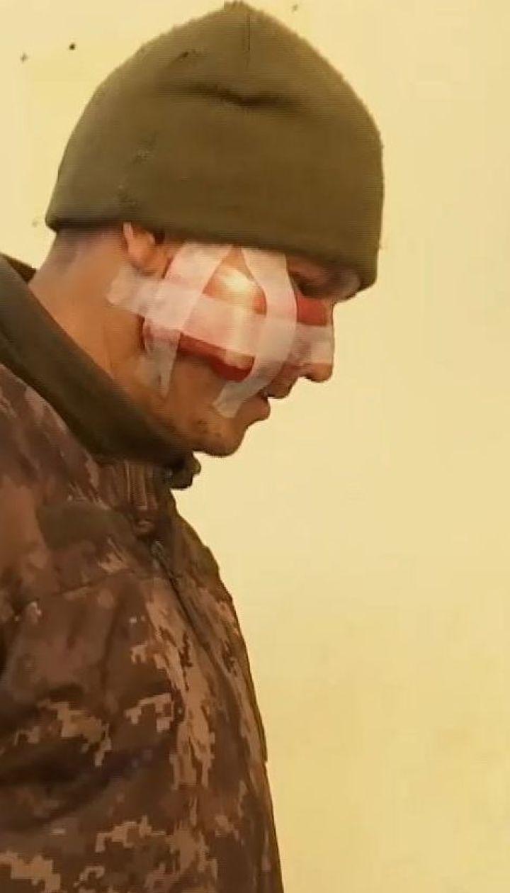 Загрози життю бійцям, пораненим під час обстрілу бойовиками вантажівки, немає