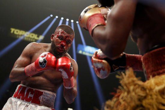 Шведський боксер показав дірку у лобі після бою з потенційним суперником Гвоздика