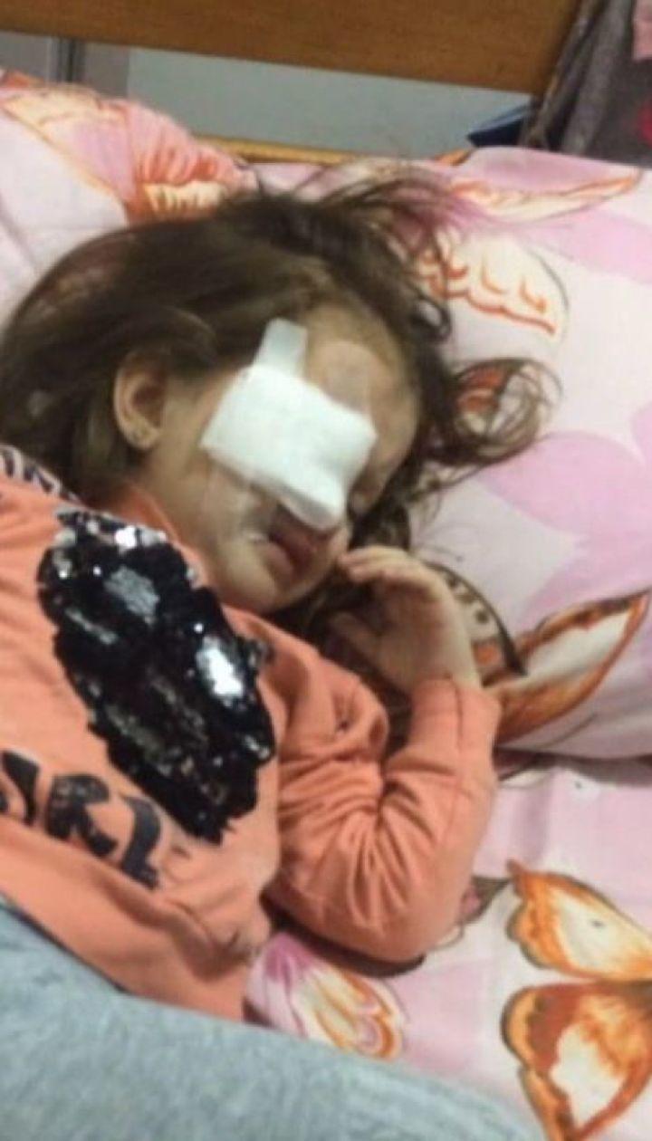 В детском саду девочка едва не осталась без глаза из-за молчания воспитательницы