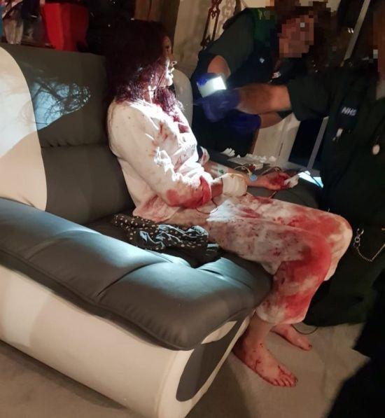 Школярка прикрила собою закривавлену матір від нападника з ножем і врятувала їй життя