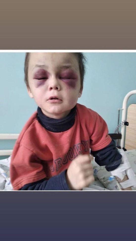 За жорстоке побиття 6-річного хлопчика на Вінниччині затримали його мачуху
