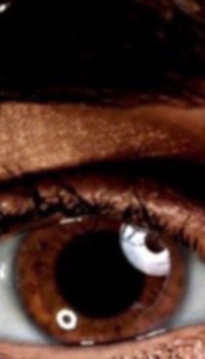 Люди с карими глазами более подвержены стрессам и депрессиям в зимний период