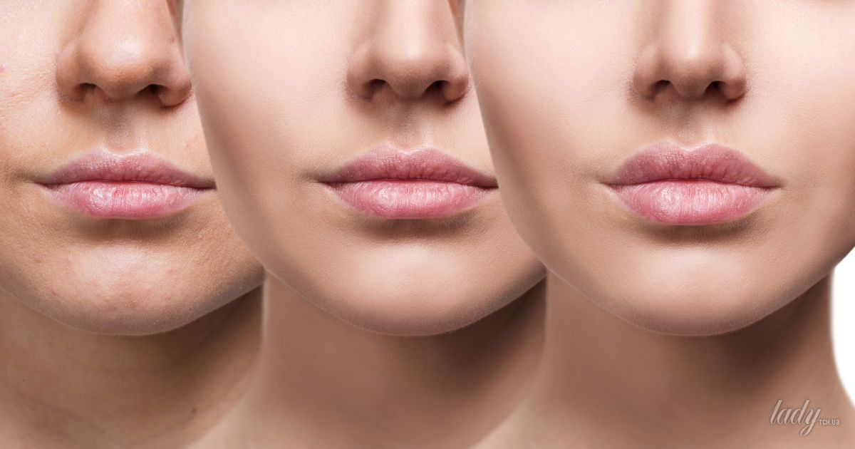 Гид по гормонам: влияние на кожу и процессы старения