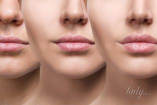Як відновити виснажену шкіру