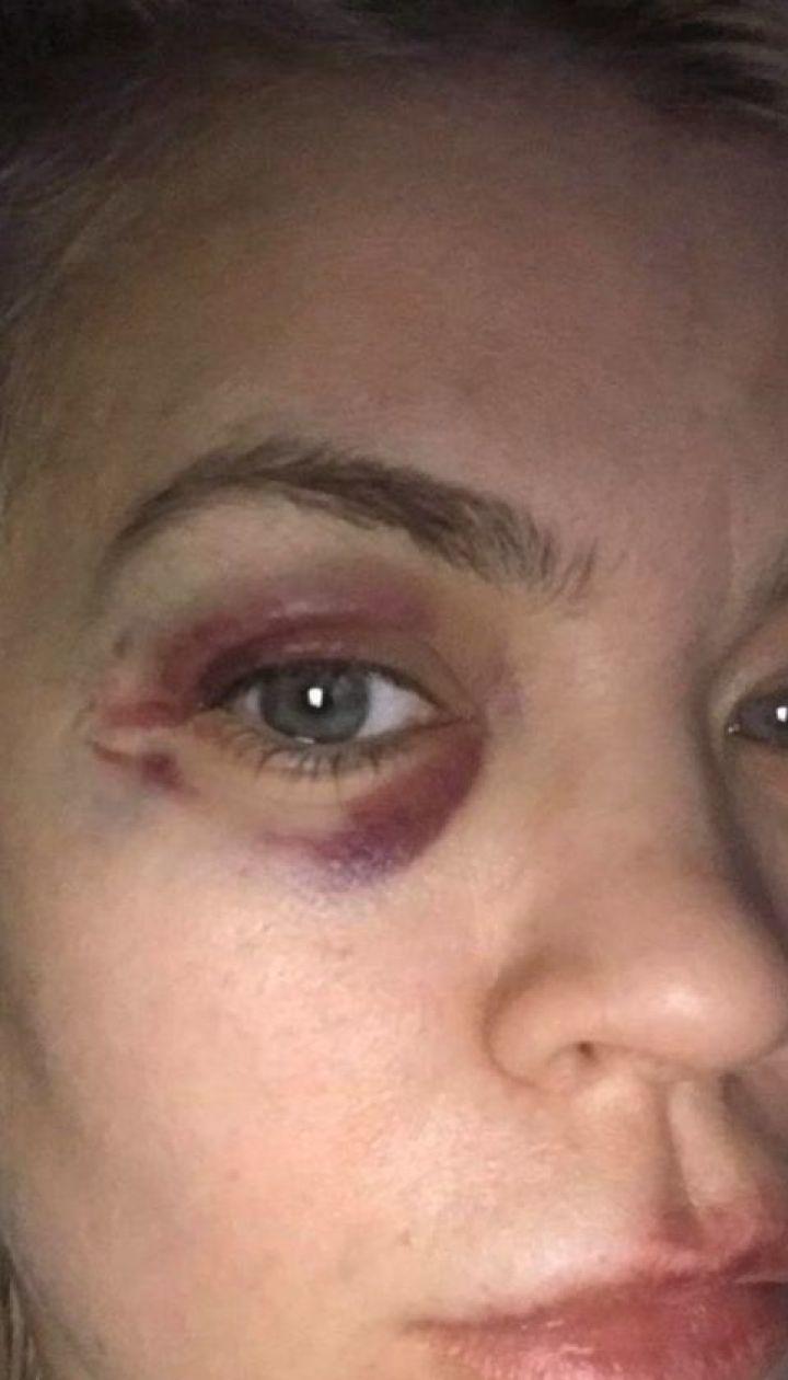 Экс-супруга футболиста Александра Алиева обвиняет его в домашнем насилии