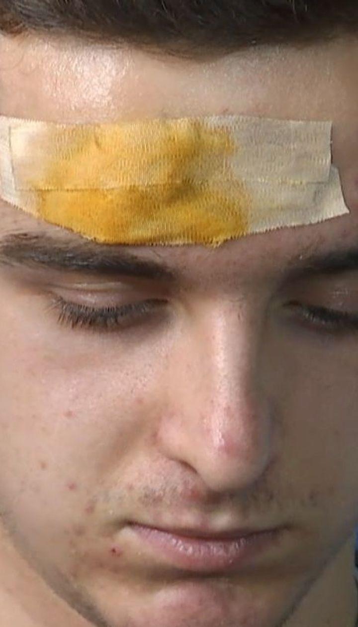 Электронная сигарета взорвалась в руках 18-летнего парня