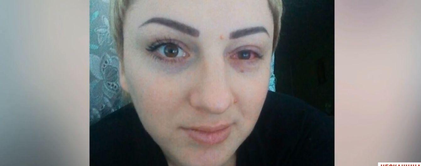В Умані жінка втратила зір на одному оці після татуажу повік
