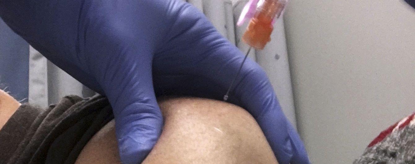 МОЗ сообщил об отправке в регионы 15 тысяч доз вакцин против бешенства