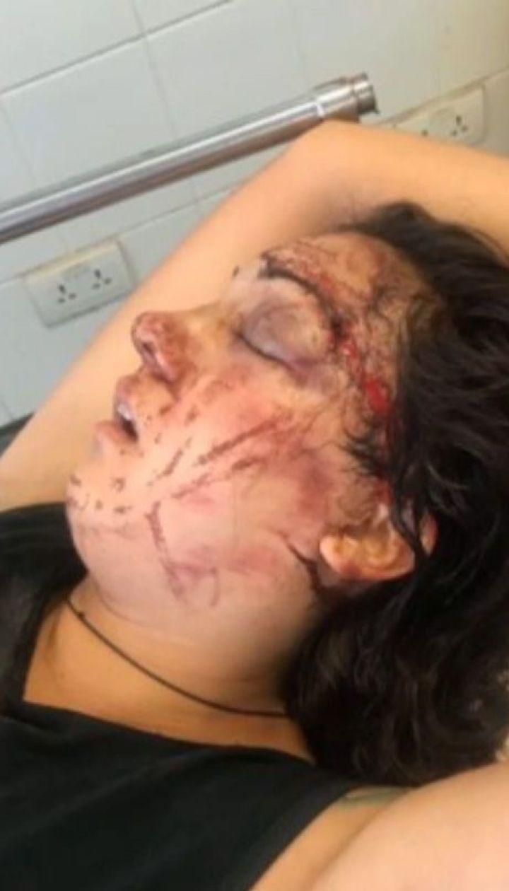 В Камбодже 22-летняя украинка попала в ДТП при загадочных обстоятельствах