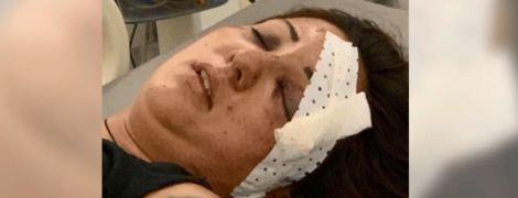 Молода українка потрапила в загадкову ДТП у Камбоджі