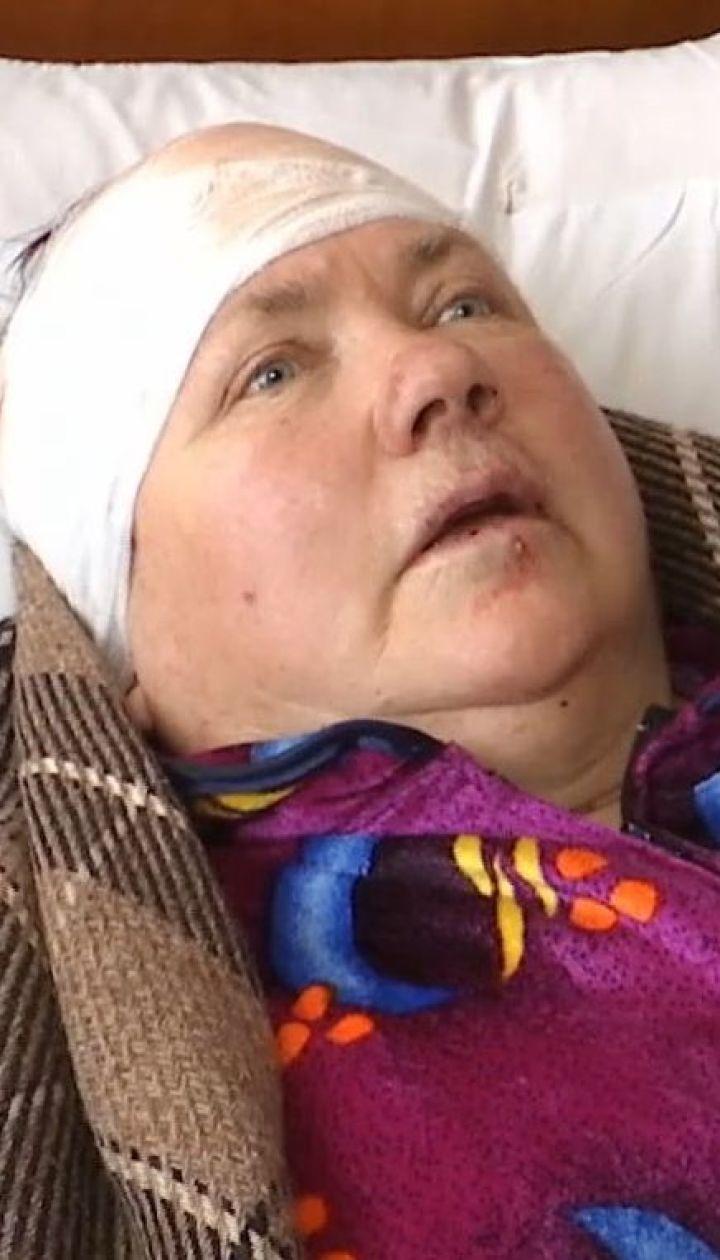 Нападение на пенсионерок: в Днепре неизвестные в масках били пожилых женщин молотком и битой