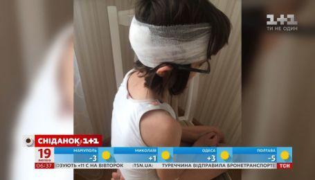 У київській школі не викликали швидку дівчинці з розбитою головою