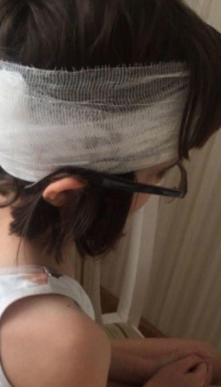 В киевской школе не вызвали скорую девочке с разбитой головой
