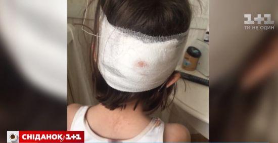 Скандал у столичній школі: дитині з розбитою головою не викликали швидку