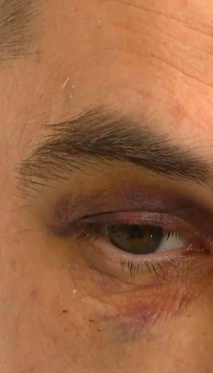 Освітяни проти копів: на Прикарпатті директор школи та вчитель фізкультури побили поліцейських