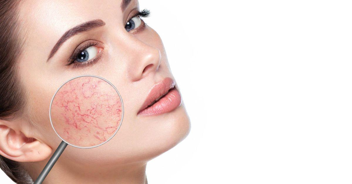 Как избавиться от купероза на лице: полезные советы