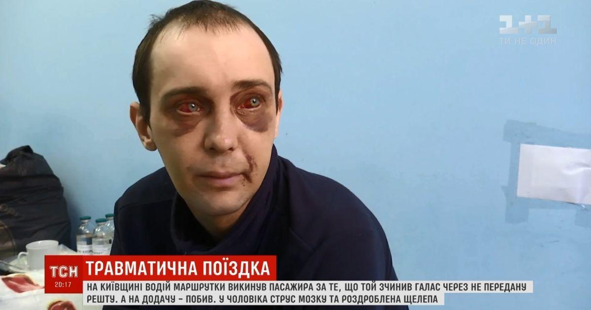 Открытая ЧМТ и тяжелый перелом челюсти: на Киевщине водитель маршрутки