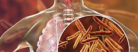 Паличка Коха vs людство: чи вб'є нас туберкульоз