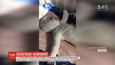 Почти сварился заживо: в Одесской области 11-месячный малыш упал в ведро с кипятком