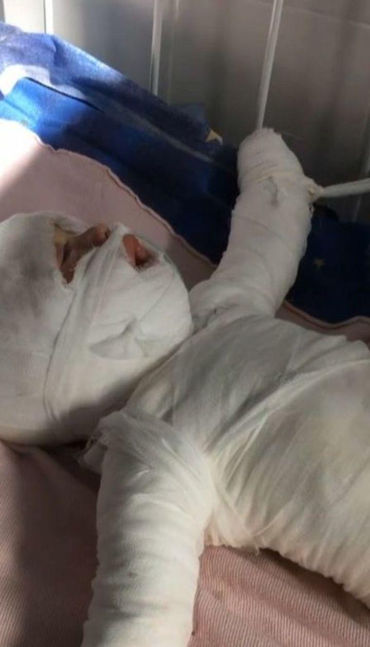 Мало не зварився живцем: на Одещині 11-місячний малюк упав у відро з окропом