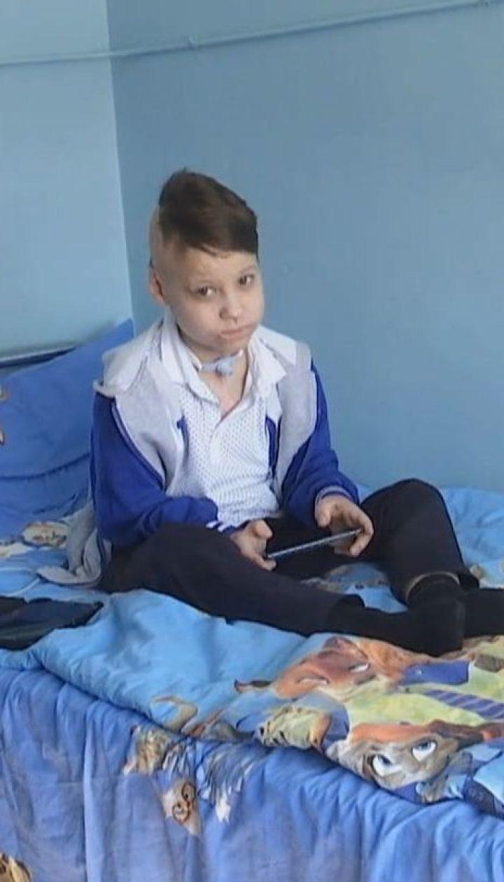 9-річного хлопчика, який вижив після удару струмом, кинули батьки