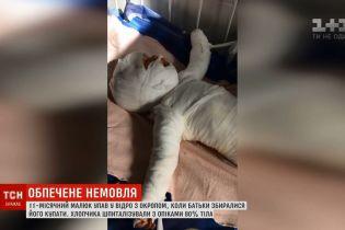 На Одещині немовля впало у відро з окропом