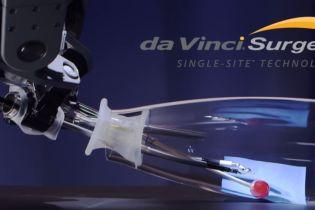 Перший в Україні робот-хірург Da Vinciпровів операції у Вінниці