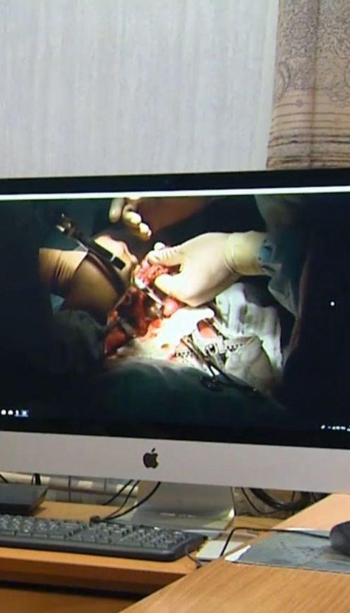 Киевские хирурги провели уникальную серию операций девочке с врожденными пороками