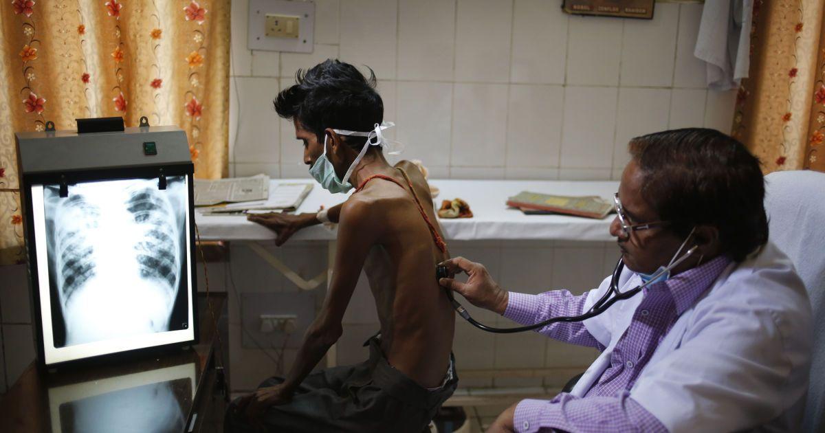 Человечество может одолеть туберкулез во всем мире лишь за 25 лет. Ученые рассказали как