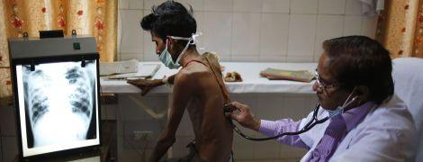 Людство може здолати туберкульоз в усьому світі лише за 25 років. Науковці розповіли як