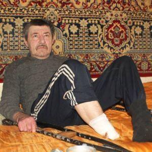 На Сумщине мужчина ампутировал себе ступню и выбросил ее на улицу. Конечность нашла собака