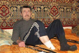 На Сумщині чоловік ампутував собі ступню і викинув її на вулицю. Кінцівку знайшов собака