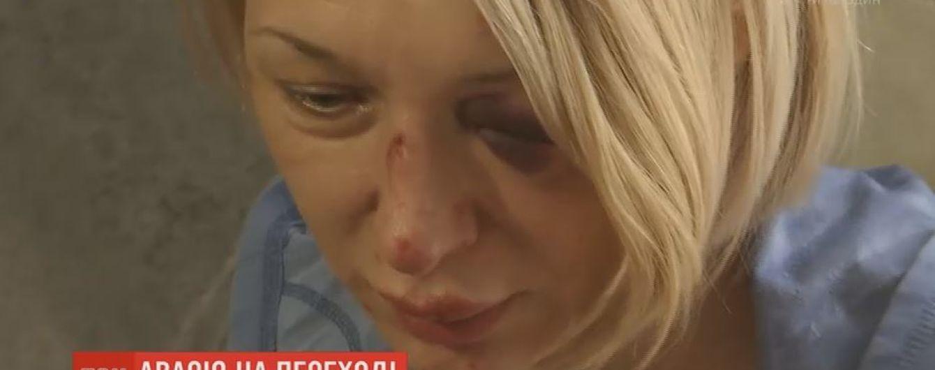 Пострадавшая под колесами маршрутки женщина рассказала подробности аварии