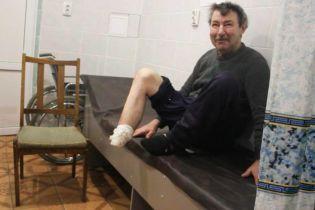 На Сумщине госпитализировали мужчину, который кухонным ножом ампутировал себе ступню и выбросил на улицу