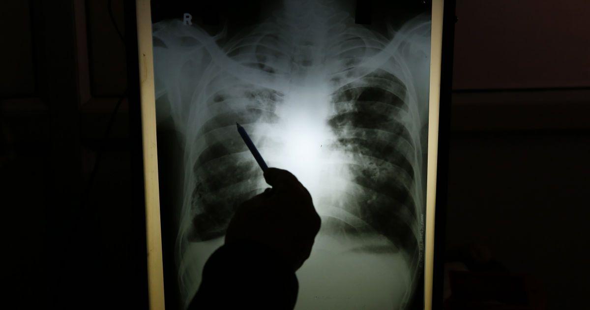 В Украине почти на 30% уменьшилось число случаев туберкулеза: в каких областях больше всего больных