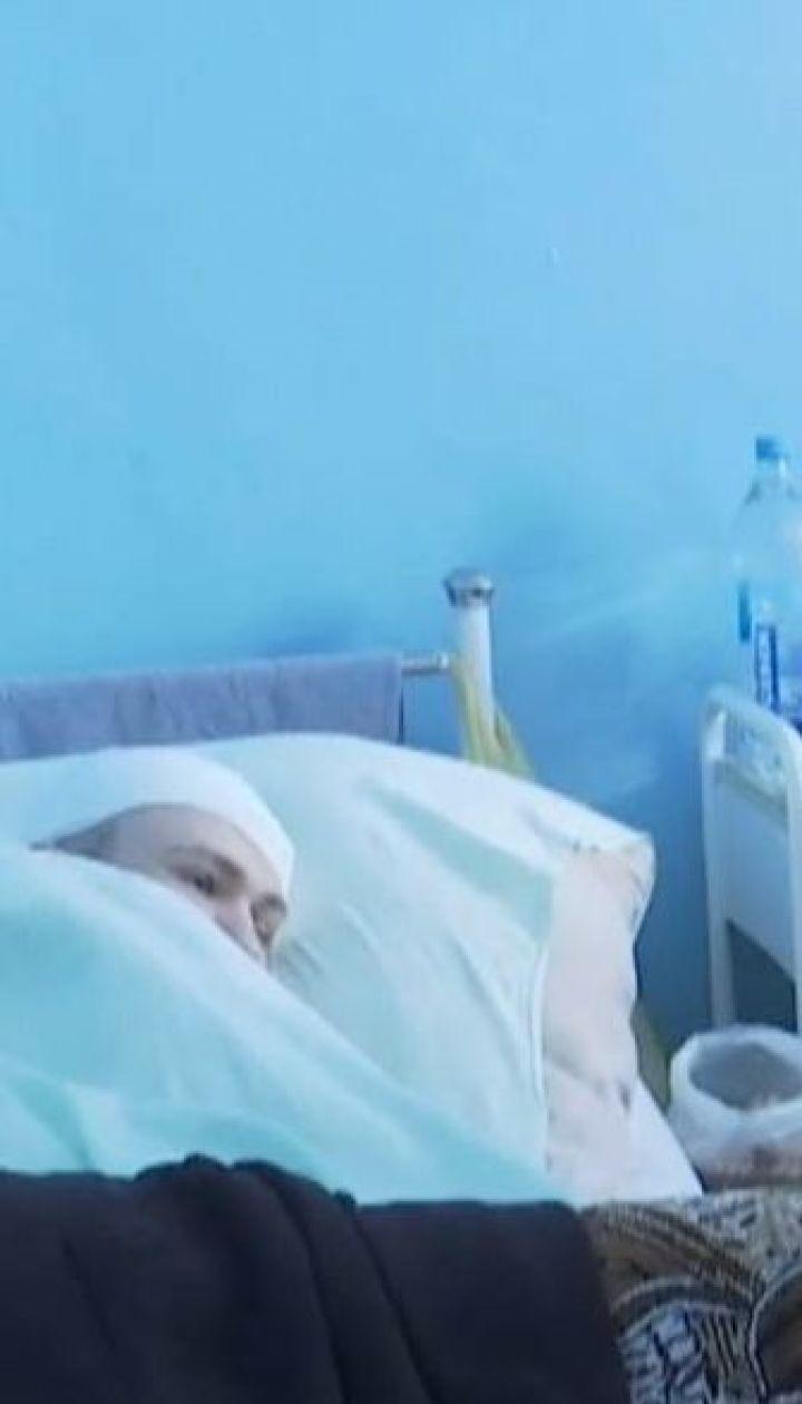 Восьмиклассник побил в год старшего парня так, что тот получил тяжелую травму головы