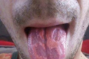 Австралієць показав, як енергетичні напої знищили його язик
