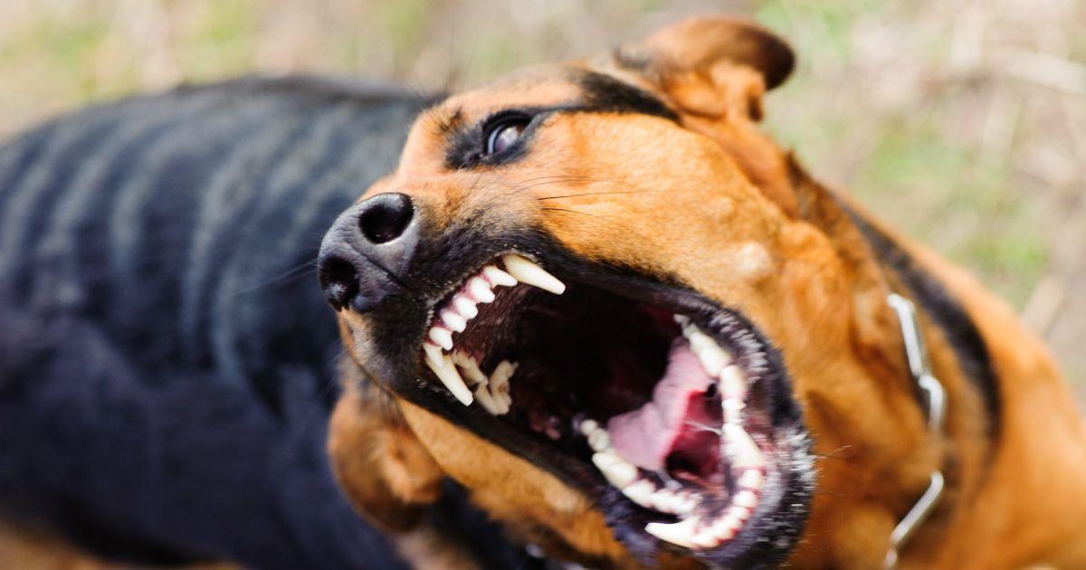 57 швов только на голове: под Киевом собака набросилась и покусала мал