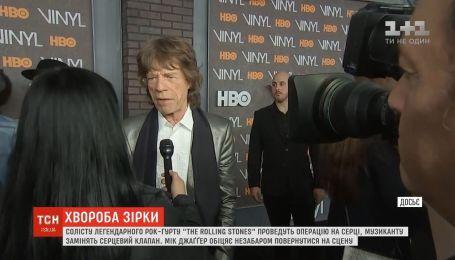 Лідеру The Rolling Stones Міку Джаггеру проведуть операцію на серці